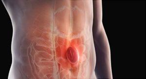 Hernia abdominal hombres
