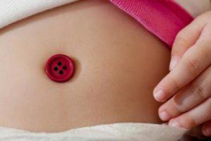 botón para hernia umbilical