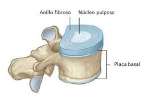 disfunción eréctil relacionada con hernia de disco