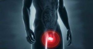 dolor en los testiculos