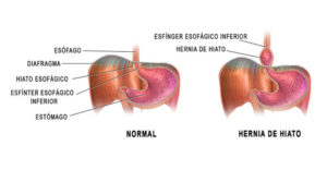 hernia de hiato