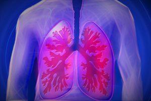 complicación en los pulmones
